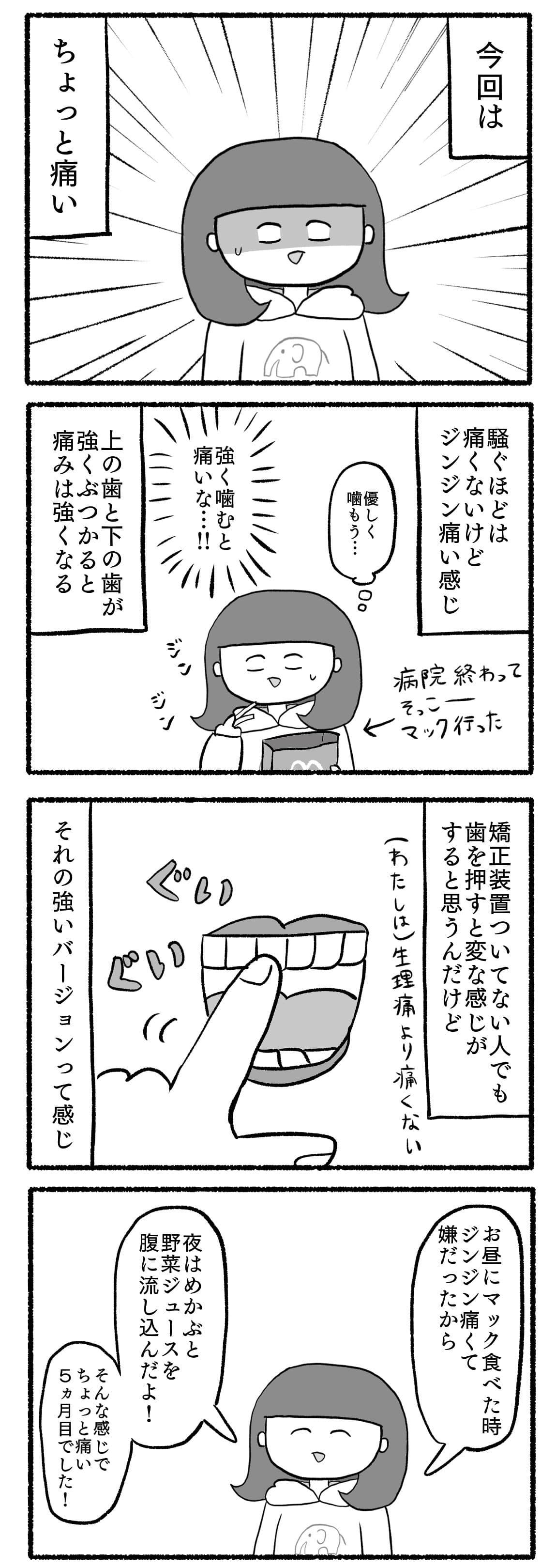 歯列矯正レポ漫画